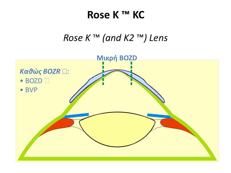 Rose K ™ KC Rose K ™ (and K2 ™) Lens Καθώς BOZR  BOZD  BVP  Μικρή BOZD