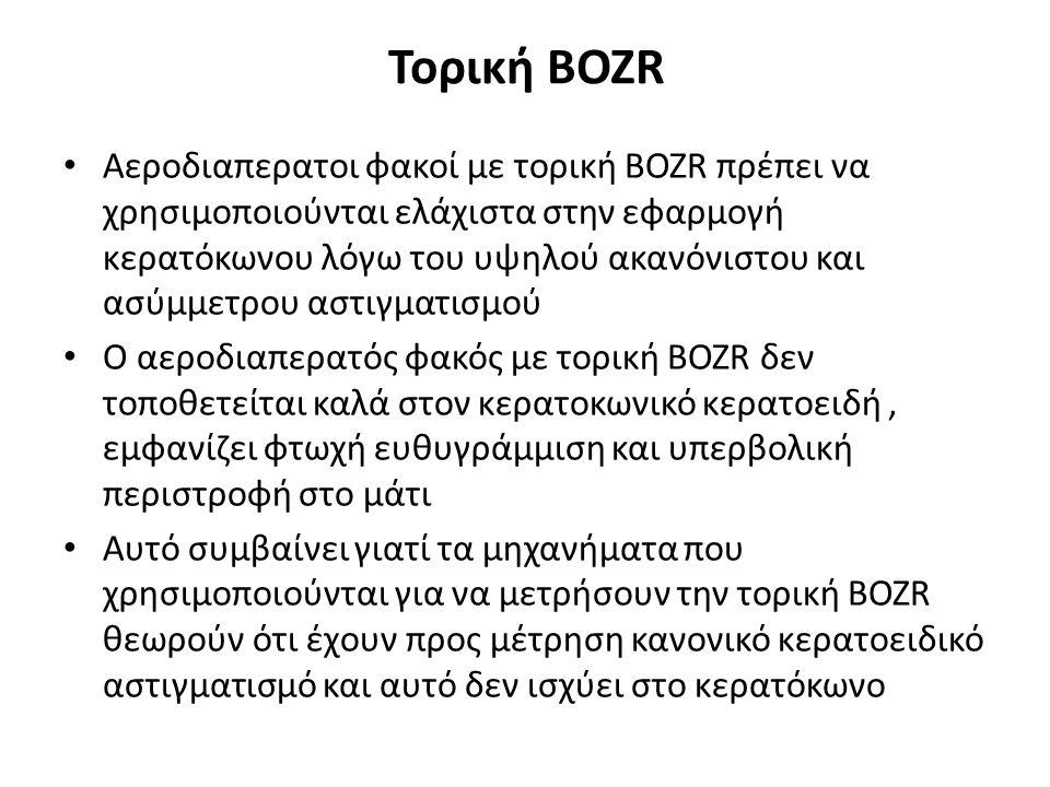 Τορική BOZR Αεροδιαπερατοι φακοί με τορική BOZR πρέπει να χρησιμοποιούνται ελάχιστα στην εφαρμογή κερατόκωνου λόγω του υψηλού ακανόνιστου και ασύμμετρου αστιγματισμού Ο αεροδιαπερατός φακός με τορική BOZR δεν τοποθετείται καλά στον κερατοκωνικό κερατοειδή, εμφανίζει φτωχή ευθυγράμμιση και υπερβολική περιστροφή στο μάτι Αυτό συμβαίνει γιατί τα μηχανήματα που χρησιμοποιούνται για να μετρήσουν την τορική BOZR θεωρούν ότι έχουν προς μέτρηση κανονικό κερατοειδικό αστιγματισμό και αυτό δεν ισχύει στο κερατόκωνο