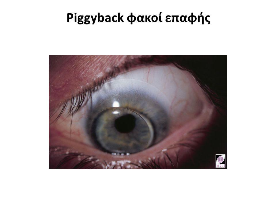 Piggyback φακοί επαφής