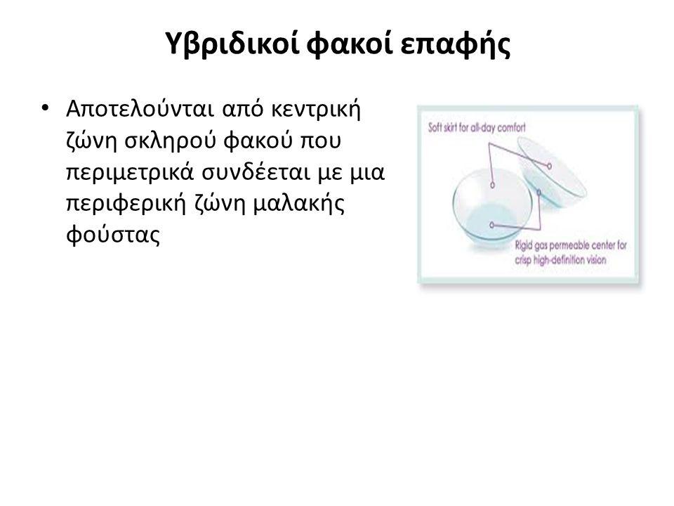 Υβριδικοί φακοί επαφής Αποτελούνται από κεντρική ζώνη σκληρού φακού που περιμετρικά συνδέεται με μια περιφερική ζώνη μαλακής φούστας