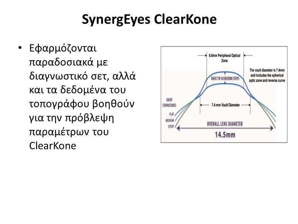 SynergEyes ClearKone Εφαρμόζονται παραδοσιακά με διαγνωστικό σετ, αλλά και τα δεδομένα του τοπογράφου βοηθούν για την πρόβλεψη παραμέτρων του ClearKone