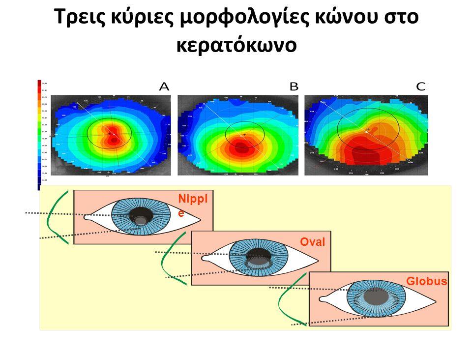 Τρεις κύριες μορφολογίες κώνου στο κερατόκωνο Nippl e Oval Globus