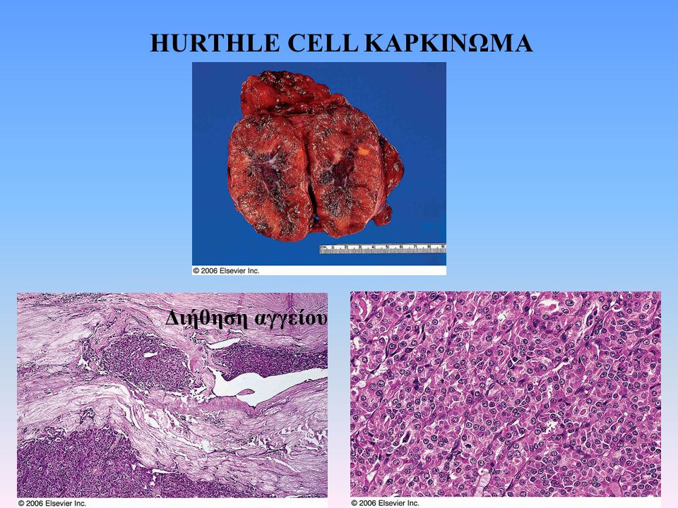 HURTHLE CELL ΚΑΡΚΙΝΩΜΑ Διήθηση αγγείου