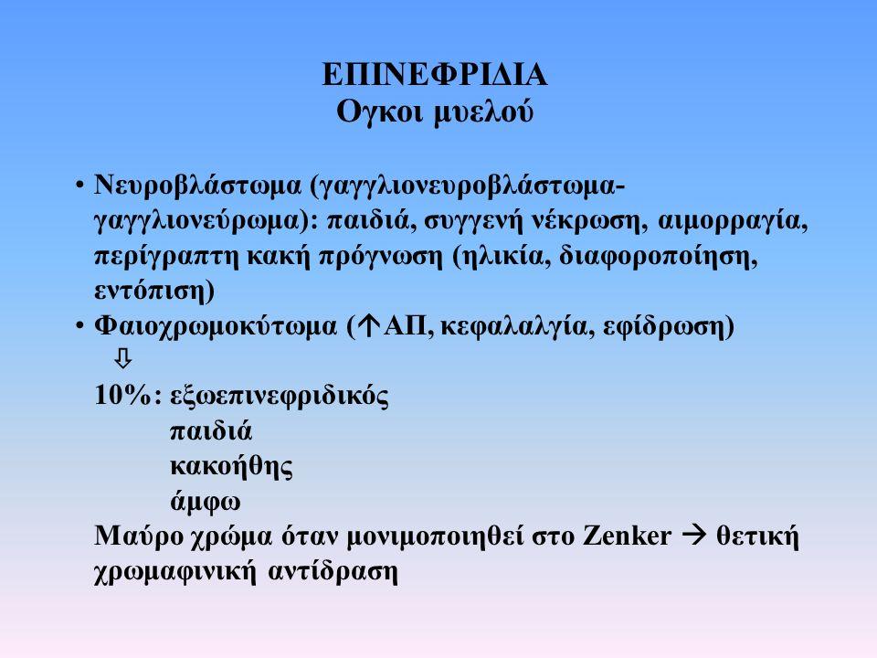 ΕΠΙΝΕΦΡΙΔΙΑ Ογκοι μυελού Νευροβλάστωμα (γαγγλιονευροβλάστωμα- γαγγλιονεύρωμα): παιδιά, συγγενή νέκρωση, αιμορραγία, περίγραπτη κακή πρόγνωση (ηλικία,