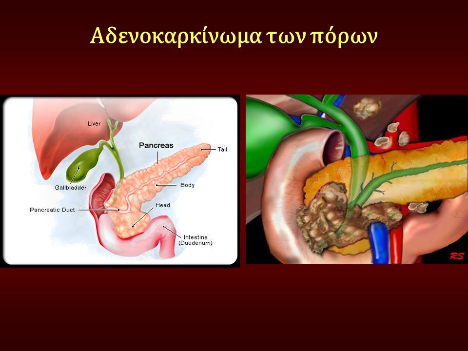 Αδενοκαρκίνωμα των πόρων