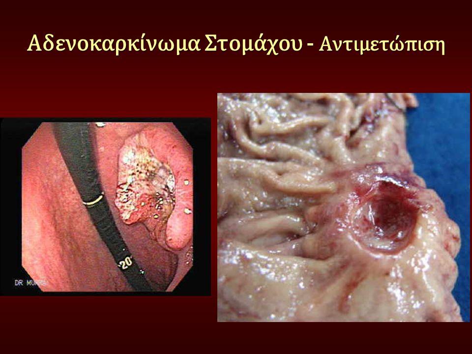 Χειρουργική εκτομή ο βασικός θεραπευτικός χειρισμός Αντιμετώπιση 50% των βλαβών είναι χειρουργήσιμες Δυνητικά θεραπευτική εκτομή μόνο στο 50% Αδενοκαρκίνωμα Στομάχου