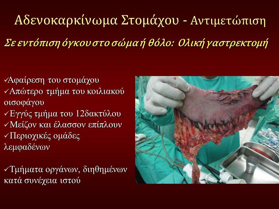 Αδενοκαρκίνωμα Στομάχου - Αντιμετώπιση Αφαίρεση του στομάχου Αφαίρεση του στομάχου Απώτερο τμήμα του κοιλιακού οισοφάγου Απώτερο τμήμα του κοιλιακού ο