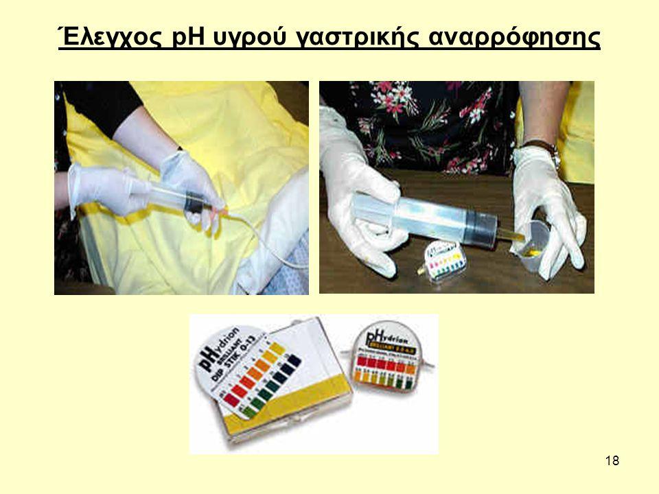 18 Έλεγχος pH υγρού γαστρικής αναρρόφησης