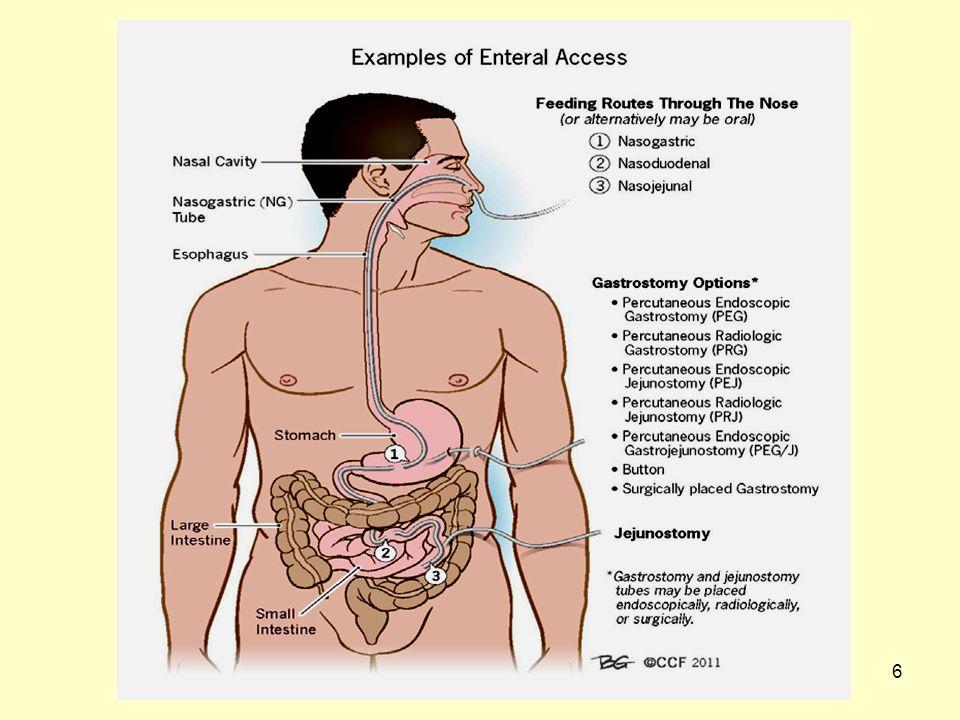 57 Αλγόριθμος για χρήση στην κλινική πράξη σχετικά με την επιλογή της οδού για εντερική διατροφή