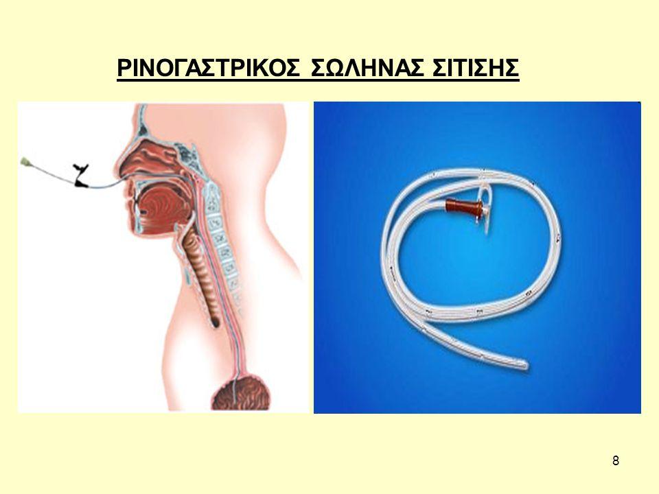 19 Δ) έλεγχος με το στηθοσκόπιο Χορηγείται από το levin 60ml αέρας και ελέγχεται αν ακούγεται στο στομάχι.