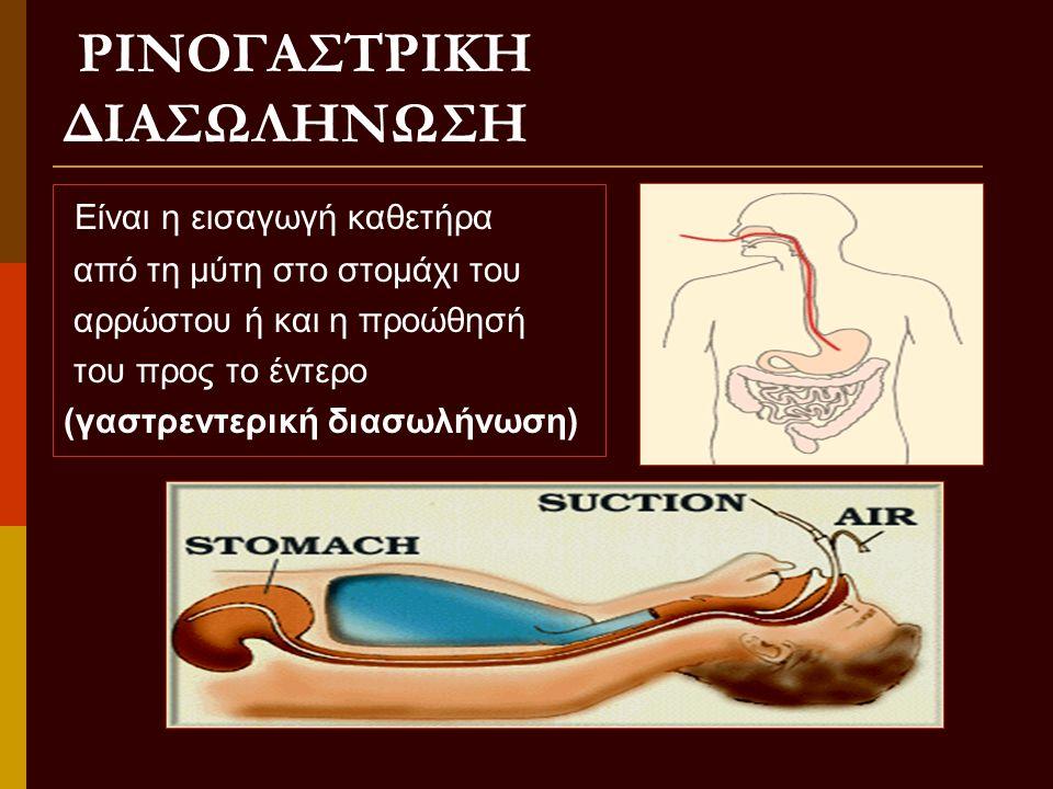 ΣΚΟΠΟΙ ΣΚΟΠΟΙ  Αφαίρεση υγρών και αέρα  Πλύση στομάχου  Τεχνητή διατροφή  Εφαρμογή εσωτερικής πίεσης σε αιμορ-ραγία κιρσών οισοφάγου  Λήψη γαστρικού υγρού για εξέταση (σπάνια)
