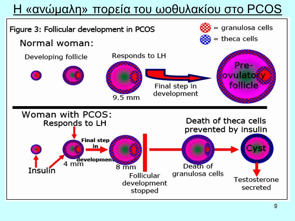10 Πολυκυστικές ωοθήκες Με τον όρο πολυκυστικές ωοθήκες περιγράφουμε τις ωοθήκες που περιέχουν πολλές μικρές κύστεις, οι οποίες συνήθως δεν ξεπερνούν τα 8 χιλιοστά σε μέγεθος, και που εντοπίζονται τις πιο πολλές φορές ακριβώς κάτω από την επιφάνεια της ωοθήκης.