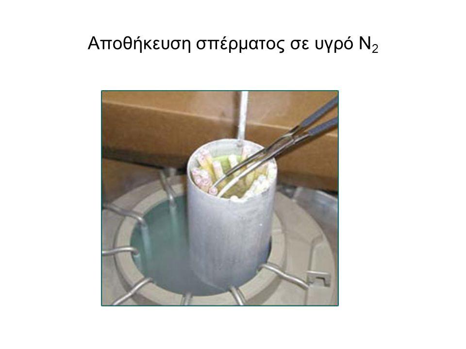 Αποθήκευση σπέρματος σε υγρό Ν 2