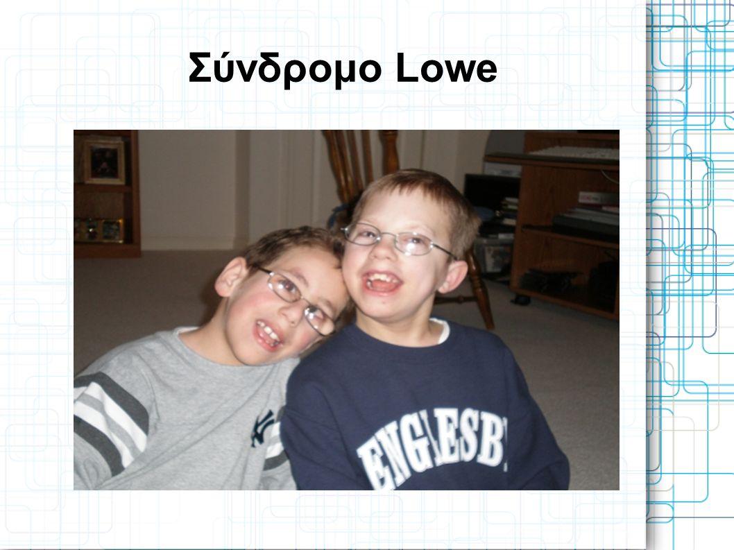 Το Σύνδρομο Lowe είναι μια σπάνια φυλοσύνδετη γενετική πάθηση, παρουσιάζεται κυρίως στους άνδρες.