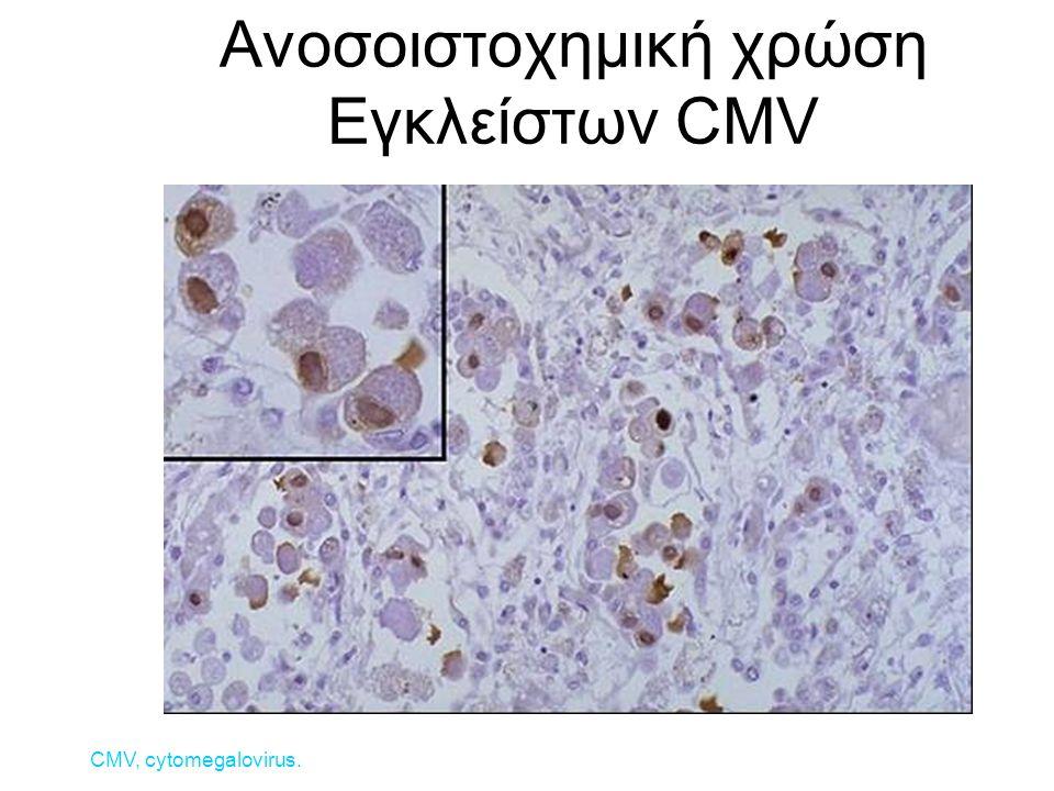 Ανοσοιστοχημική χρώση Εγκλείστων CMV CMV, cytomegalovirus.