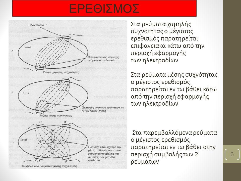 Στα ρεύματα χαμηλής συχνότητας ο μέγιστος ερεθισμός παρατηρείται επιφανειακά κάτω από την περιοχή εφαρμογής των ηλεκτροδίων Στα ρεύματα μέσης συχνότητας ο μέγιστος ερεθισμός παρατηρείται εν τω βάθει κάτω από την περιοχή εφαρμογής των ηλεκτροδίων Στα παρεμβαλλόμενα ρεύματα ο μέγιστος ερεθισμός παρατηρείται εν τω βάθει στην περιοχή συμβολής των 2 ρευμάτων 6 ΕΡΕΘΙΣΜΟΣ