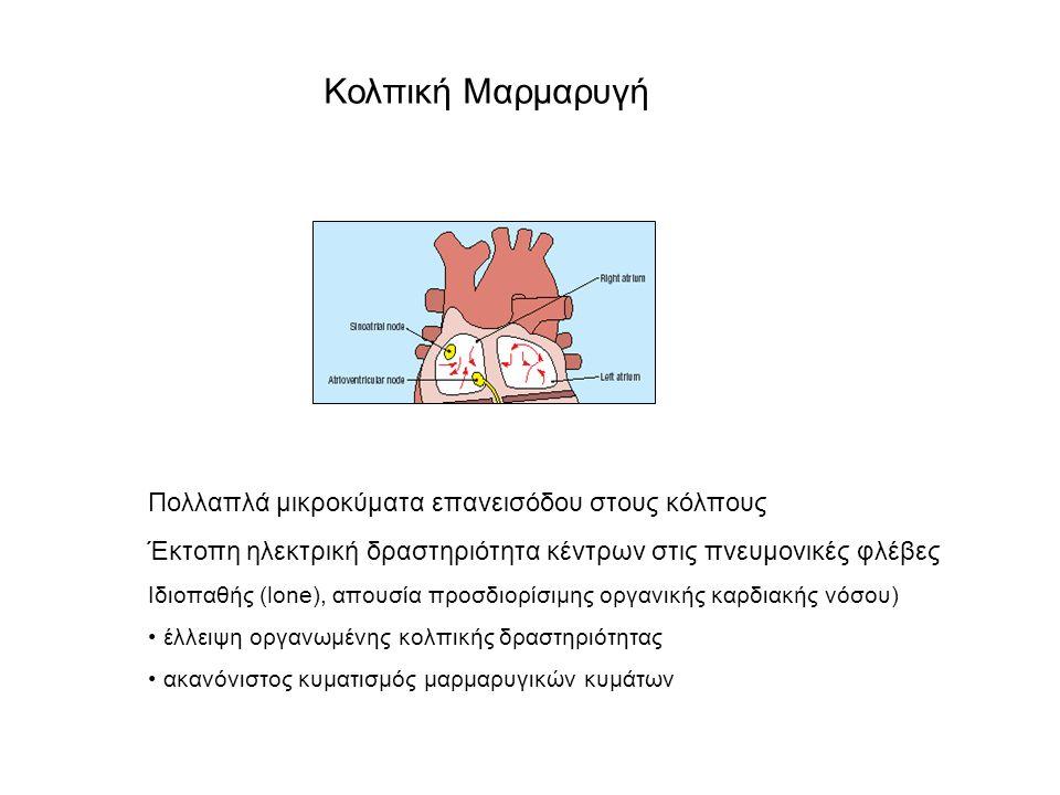 Κολπικός Πτερυγισμός Κλινική εικόνα Απώλεια κολπικής συστολής Συνήθης εκφύλιση σε κολπική μαρμαρυγή Μικρότερη πιθανότητα θρομβοεμβολικών επεισοδίων Ταχυαρρυθμία: μυοκαρδιοπάθεια Ταχυαρρυθμία: οξεία καρδιακή ανεπάρκεια