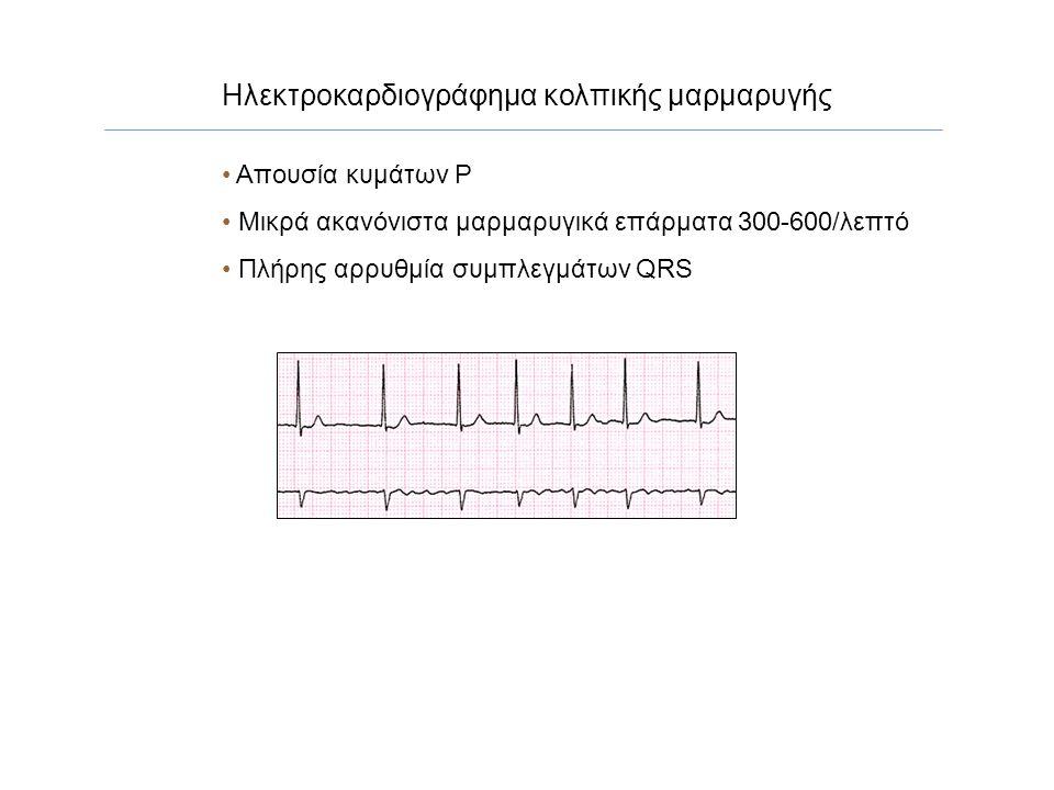 Κολπική Μαρμαρυγή Πολλαπλά μικροκύματα επανεισόδου στους κόλπους Έκτοπη ηλεκτρική δραστηριότητα κέντρων στις πνευμονικές φλέβες Ιδιοπαθής (lone), απουσία προσδιορίσιμης οργανικής καρδιακής νόσου) έλλειψη οργανωμένης κολπικής δραστηριότητας ακανόνιστος κυματισμός μαρμαρυγικών κυμάτων