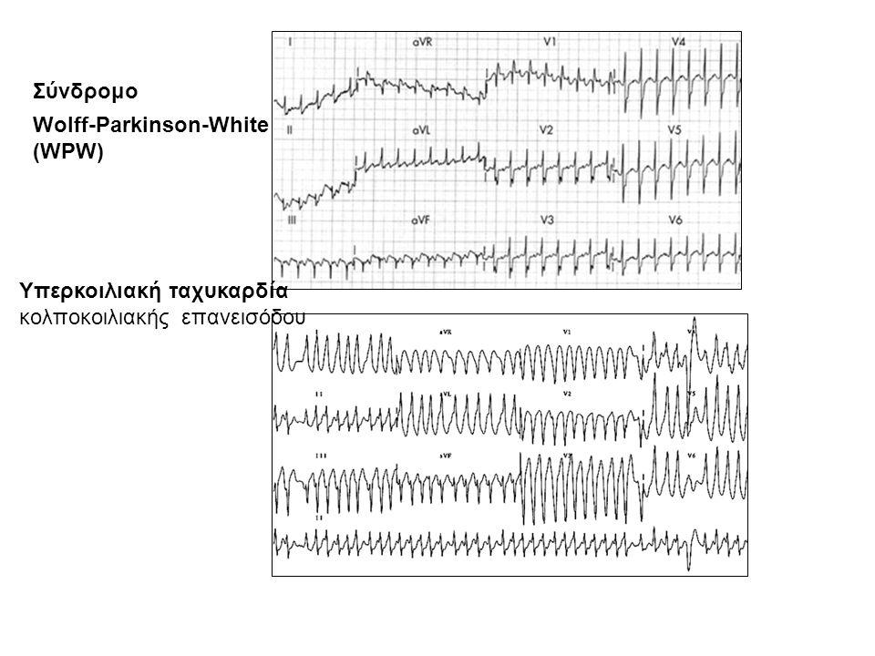 Σύνδρομο Wolff-Parkinson-White (WPW)