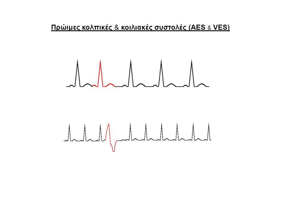 Σύνδρομο Wolff-Parkinson-White (WPW) Υπερκοιλιακή ταχυκαρδία κολποκοιλιακής επανεισόδου