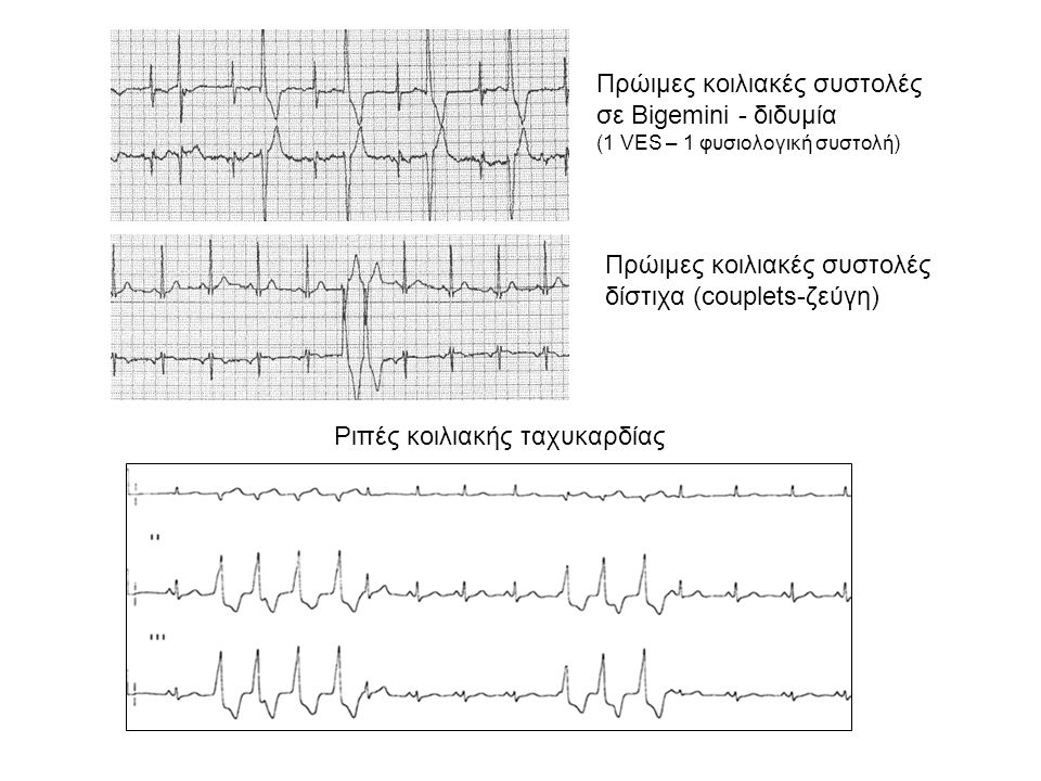 Έκτακτες (πρώιμες) κοιλιακές συστολές Απουσία οργανικής καρδιοπάθειας συνήθως αβλαβείς