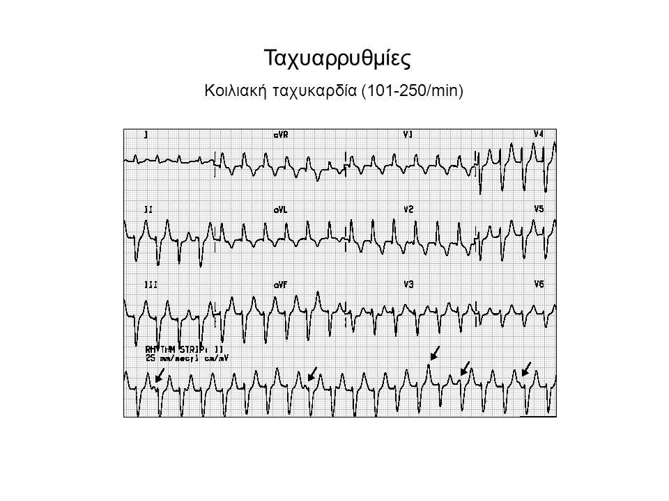Πρώιμες κοιλιακές συστολές σε Bigemini - διδυμία (1 VES – 1 φυσιολογική συστολή) Πρώιμες κοιλιακές συστολές δίστιχα (couplets-ζεύγη) Ριπές κοιλιακής ταχυκαρδίας