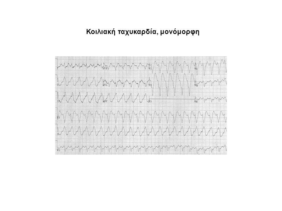 Ταχυαρρυθμίες Κοιλιακή ταχυκαρδία (101-250/min)