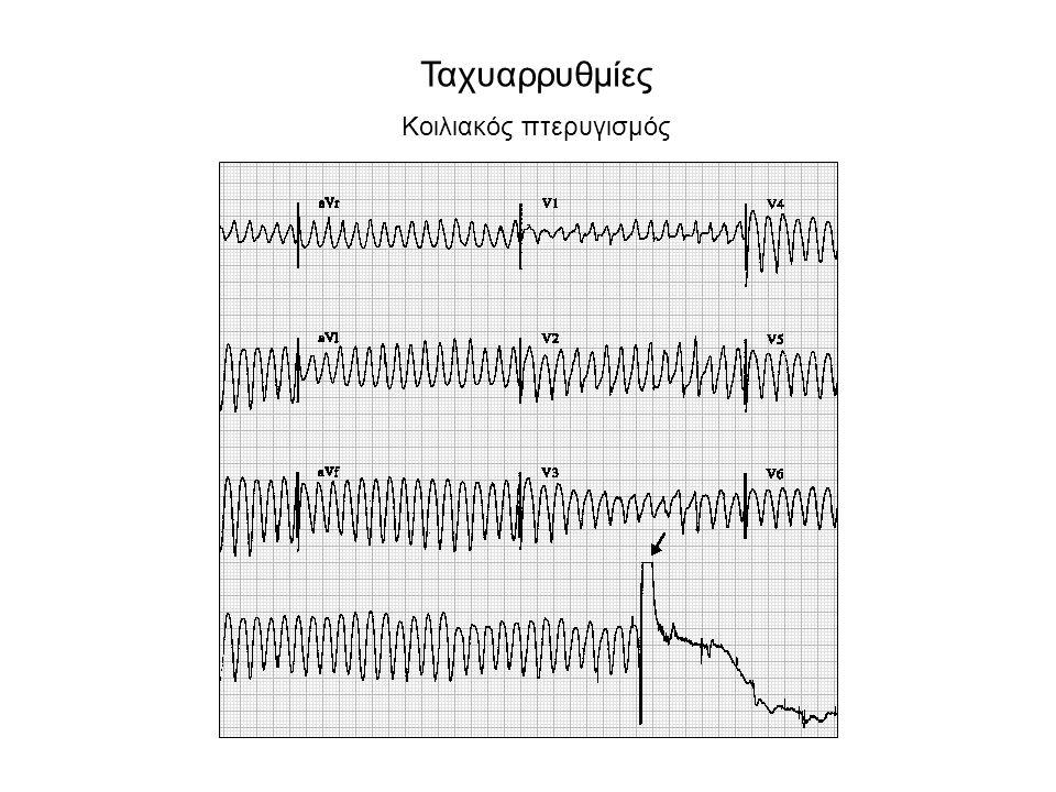 Μερικά ηλεκτροκαρδιογραφικά κριτήρια κοιλιακής ταχυκαρδίας 1.Κολποκοιλιακός διαχωρισμός 2.Συστολές σύλληψης/συγχώνευσης 3.Εύρος QRS:  140 msec (RBBB) /  160 msec (LBBB) 4.Αριστερός-υπεραριστερός άξονας 5.Ομοιομορφία QRS στις προκάρδιες απαγωγές 6.Αρχή R – ναδίρ S  100 ms Κοιλιοκολπικός διαχωρισμόςΣύλληψη Συγχώνευση