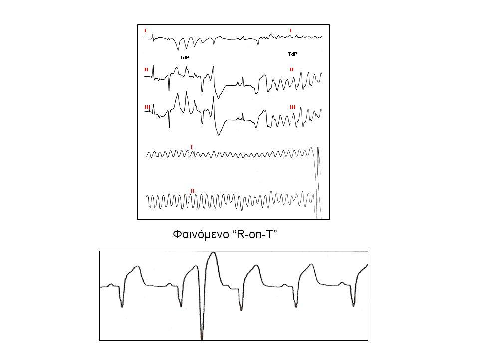 Ειδική μορφή κοιλιακής ταχυκαρδίας Torsade de pointes (Tdp) (ταχυκαρδία δίκην ριπιδίου) Μορφολογία πολύμορφης κοιλιακής ταχυκαρδίας Συνεχής μεταβολή εύρους, ύψους και άξονα QRS Συγκοπή – εκφύλιση σε κοιλιακή μαρμαρυγή Αιφνίδιος καρδιακός θάνατος Παράταση QT διαστήματος (  600 msec) Γονιδιακή διαταραχή – συγγενής μορφή παράτασης QT Μορφή 1-5: διαταραχή εξόδου καλίου (φάση ΙΙΙ) Μορφή 3: διαταραχή εισόδου ιόντων νατρίου (φάση Ι) ΔΔ: αντιαρρυθμικά φάρμακα (κλάση ΙΑ, ΙΙΙ) υπομαγνησιαιμία, υποκαλιαιμία, τρικυκλικά αντικαταθλιπτικά, φαινοθειαζίνες Θεραπεία: απινιδωτής, β-αποκλειστής