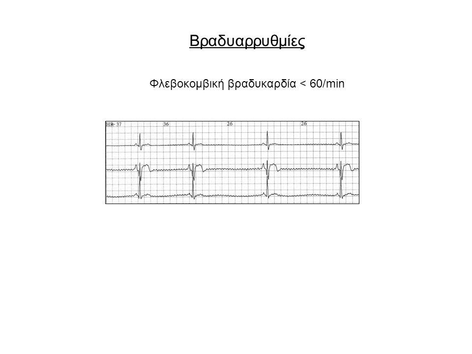 Διαγνωστική εκτίμηση αισθήματος προκάρδιων παλμών ΑρρυθμίαΙστορικόΚλινική εξέταση Φλεβοκομβική ταχυκαρδία Βαθμιαία έναρξη, άγχος, φάρμακα, παθολογική νόσος Καρδιακή συχνότητα >100/min Κολπικές ή κοιλιακές έκτακτες συστολές Αίσθηση σταματήματος καρδιάς, πηδήματος παλμού Πρώιμη συστολή με αναπληρωματική ή μη παύλα, και μικρό ή καθόλου σφυγμό Κολπική μαρμαρυγή κολπικός πτερυγισμός Συνύπαρξη καρδιακής ή πνευμονικής νόσου, ακανόνιστος ρυθμός Ακανόνιστος ή κανονικός σφυγμός, έλλειμμα παλμών Κολποκοιλιακός αποκλεισμός Κόπωση, δύσπνοια, ζάλη, συγκοπή.