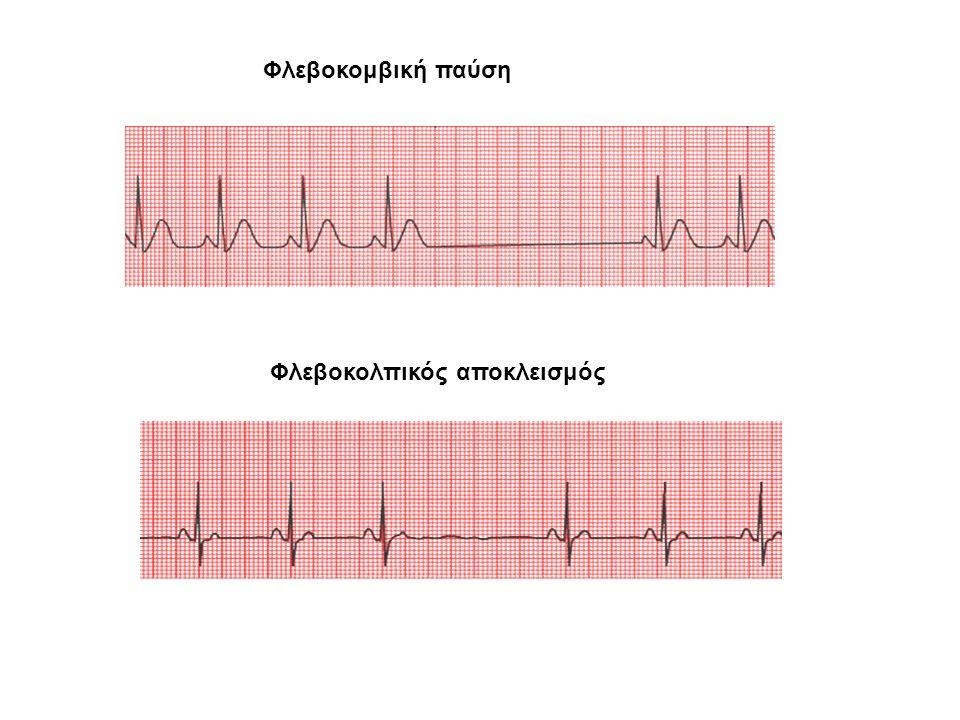 Φλεβοκομβική βραδυκαρδία Φλεβοκομβική ταχυκαρδία >100/min Φλεβοκομβική αρρυθμία