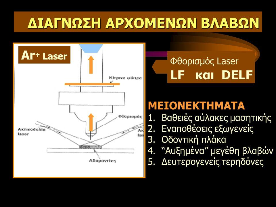 ΔΙΑΓΝΩΣΗ ΑΡΧΟΜΕΝΩΝ ΒΛΑΒΩΝ Ar + Laser Φθορισμός Laser LF και DELF ΜΕΙΟΝΕΚΤΗΜΑΤΑ 1.Βαθειές αύλακες μασητικής 2.Εναποθέσεις εξωγενείς 3.Οδοντική πλάκα 4. Αυξημένα μεγέθη βλαβών 5.Δευτερογενείς τερηδόνες