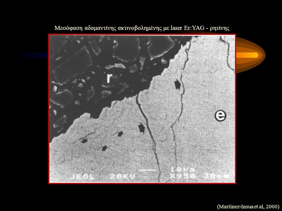 (Martinez-Insua et al, 2000) Μεσόφαση αδαμαντίνης ακτινοβολημένης με laser Er:YAG - ρητίνης