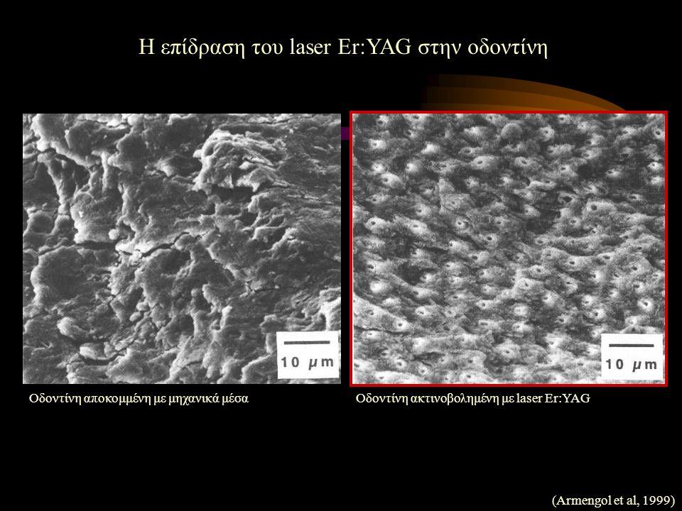 Η επίδραση του laser Er:YAG στην οδοντίνη Οδοντίνη αποκομμένη με μηχανικά μέσαΟδοντίνη ακτινοβολημένη με laser Er:YAG (Armengol et al, 1999)