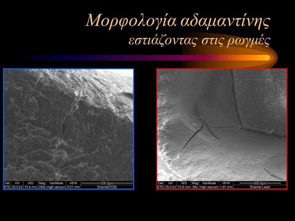 Μορφολογία αδαμαντίνης εστιάζοντας στις ρωγμές