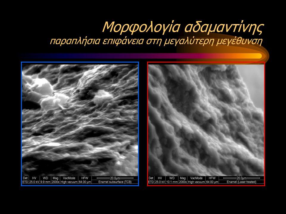 Μορφολογία αδαμαντίνης παραπλήσια επιφάνεια στη μεγαλύτερη μεγέθυνση