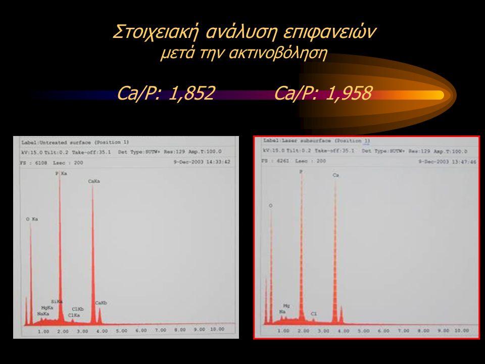 Στοιχειακή ανάλυση επιφανειών μετά την ακτινοβόληση Ca/P: 1,852 Ca/P: 1,958
