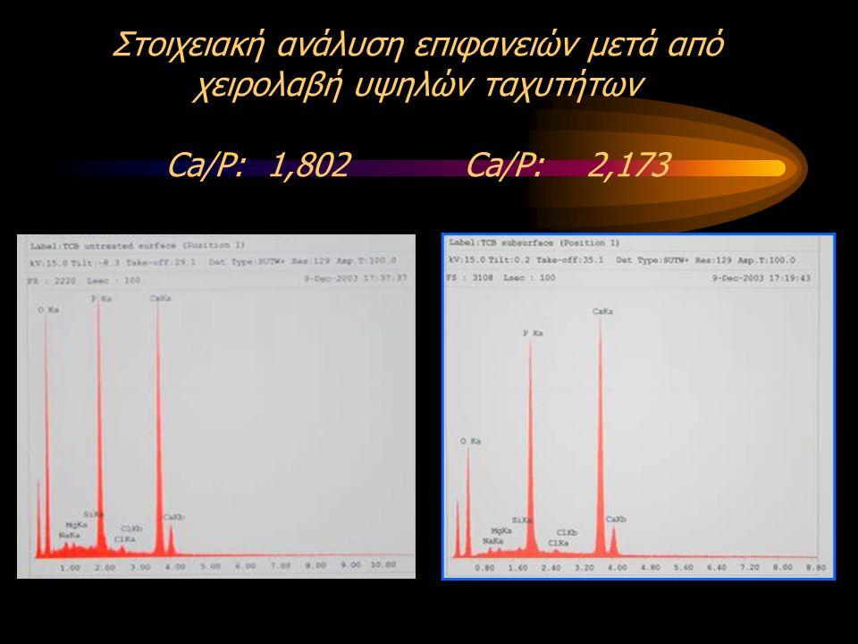 Στοιχειακή ανάλυση επιφανειών μετά από χειρολαβή υψηλών ταχυτήτων Ca/P: 1,802 Ca/P: 2,173