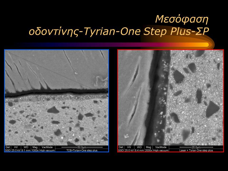 Μεσόφαση οδοντίνης-Tyrian-One Step Plus-ΣΡ