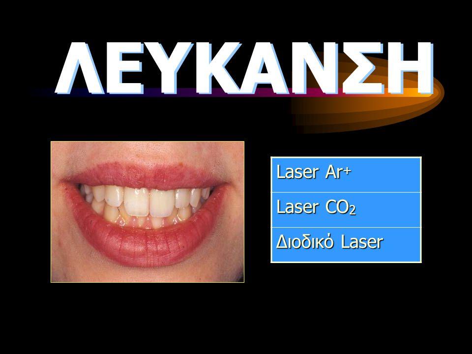 ΛΕΥΚΑΝΣΗ Laser Ar + Laser CO 2 Διοδικό Laser