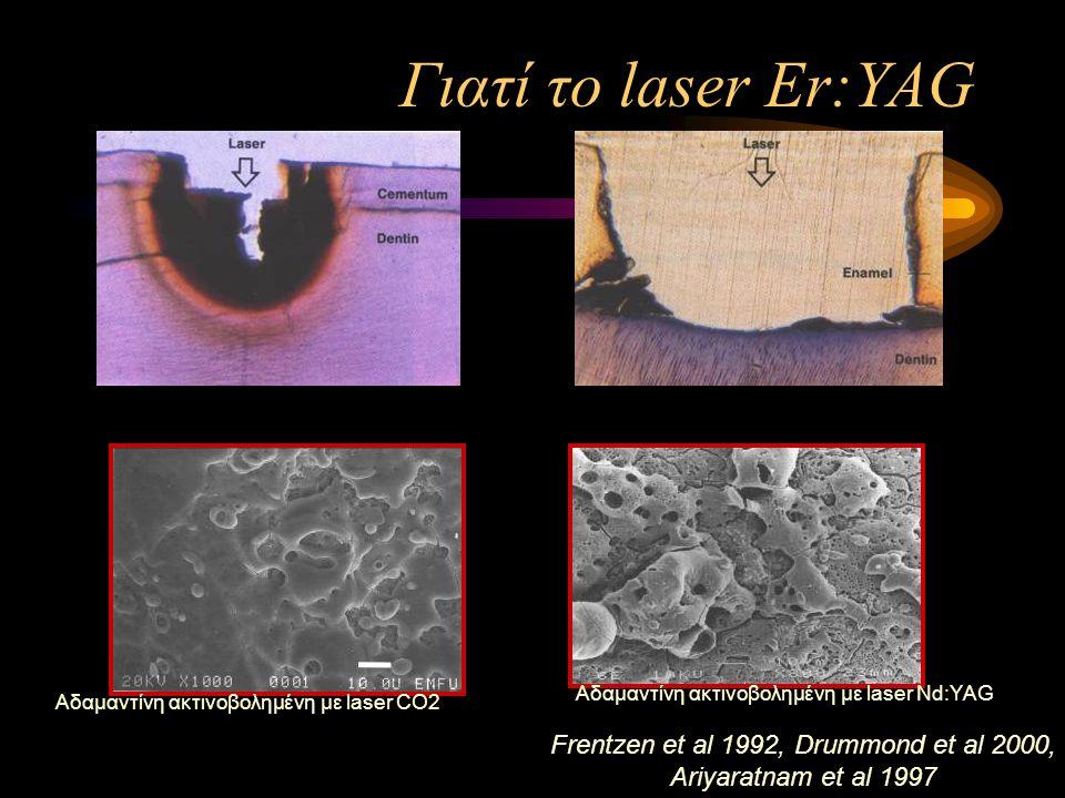 Γιατί το laser Er:YAG Frentzen et al 1992, Drummond et al 2000, Ariyaratnam et al 1997 Αδαμαντίνη ακτινοβολημένη με laser CO2 Αδαμαντίνη ακτινοβολημένη με laser Nd:YAG
