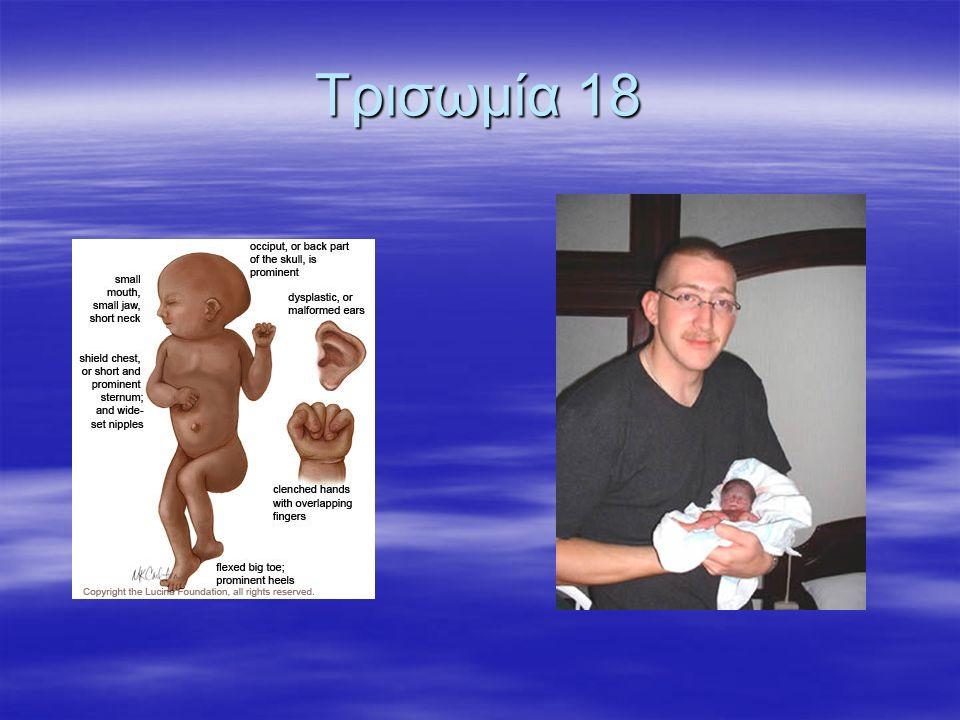 Tρισωμία 18
