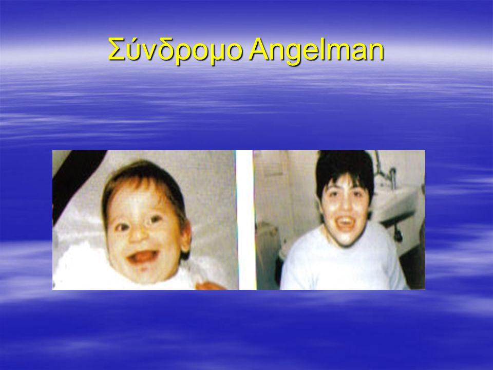 Σύνδρομο Angelman