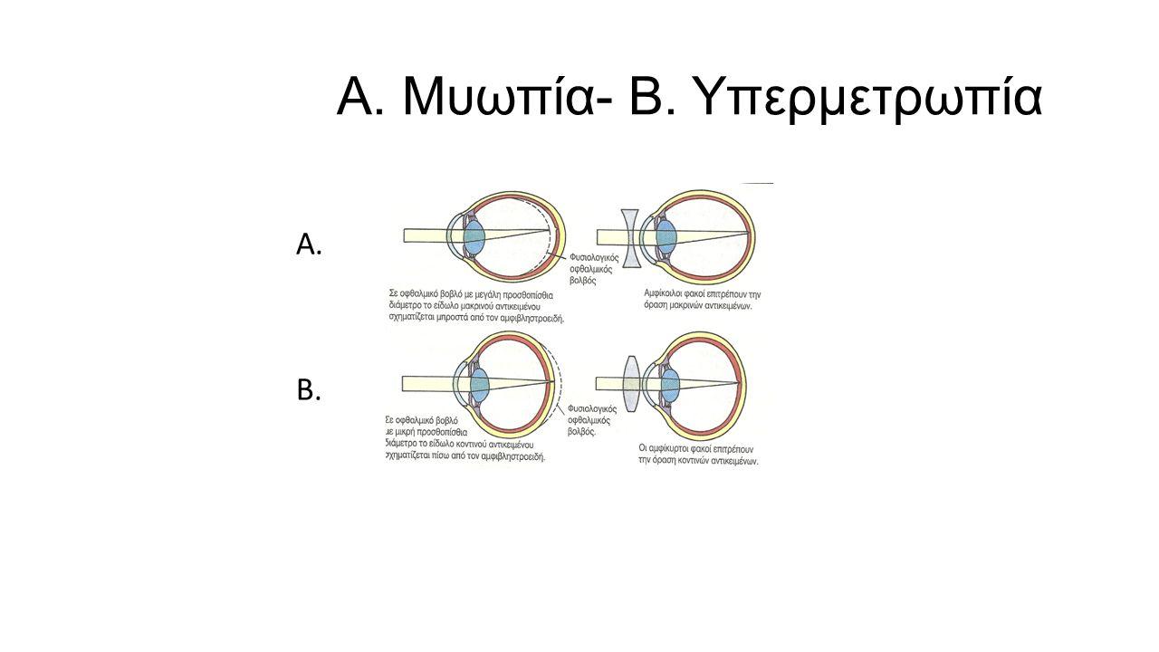 Α. Μυωπία- Β. Υπερμετρωπία Α. Β.