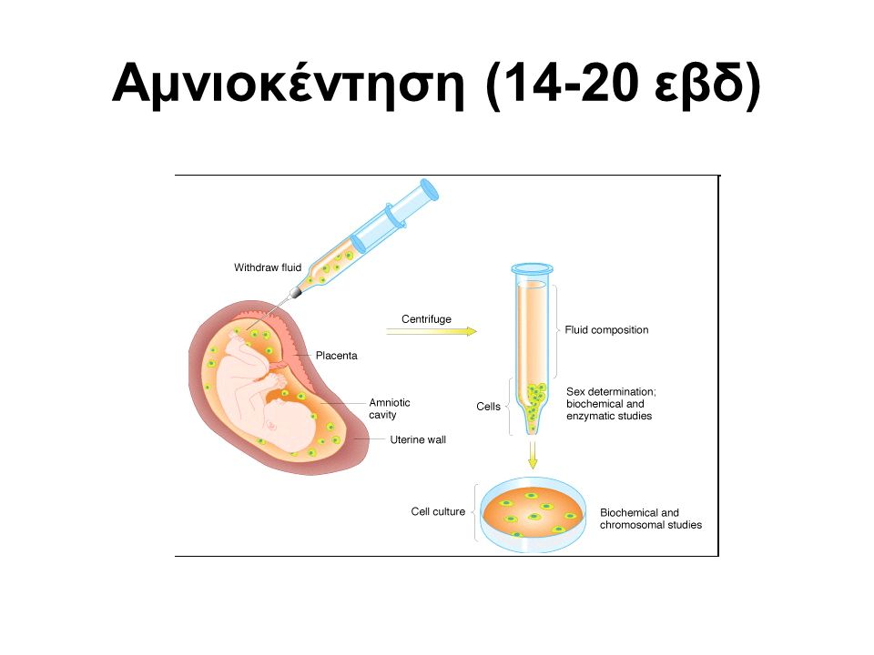 Αμνιοκέντηση (14-20 εβδ)