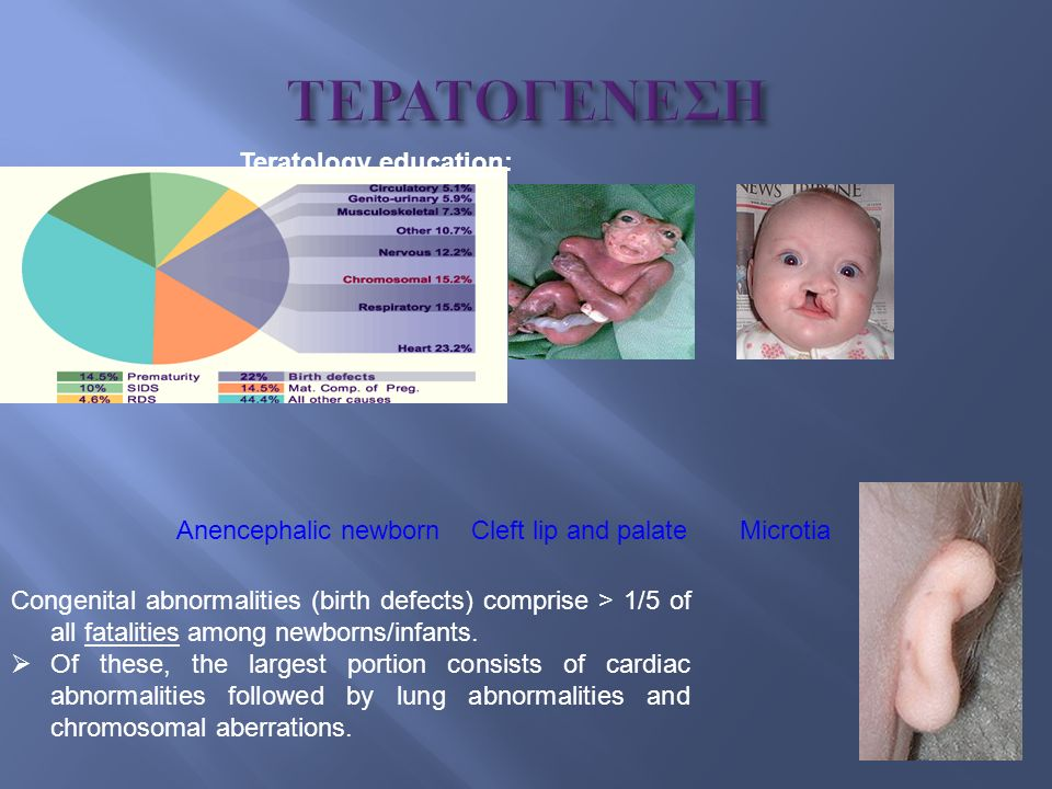 Teratology education: Anencephalic newborn Cleft lip and palate Microtia Congenital abnormalities (birth defects > 1/5 of all fatalities among newborns/infants.Of these, the largest portion consists of cardiac abnormalities followed by lung abnormalities and chromosomal aberrations.