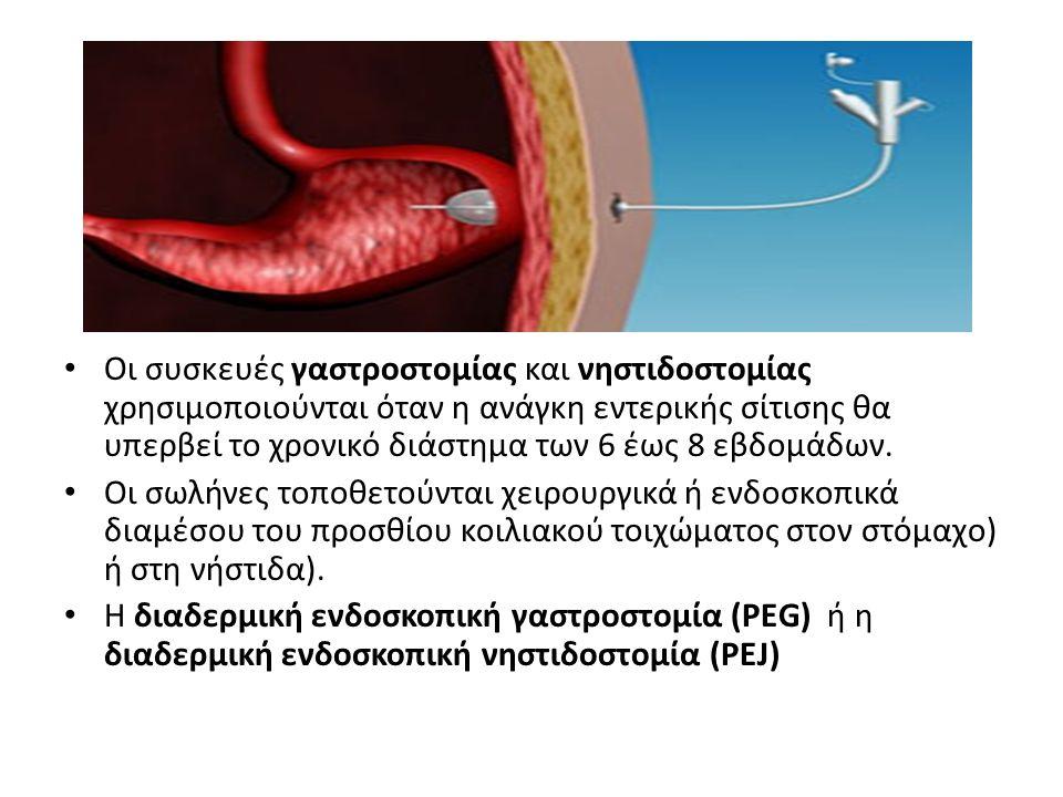 Οι συσκευές γαστροστομίας και νηστιδοστομίας χρησιμοποιούνται όταν η ανάγκη εντερικής σίτισης θα υπερβεί το χρονικό διάστημα των 6 έως 8 εβδομάδων.