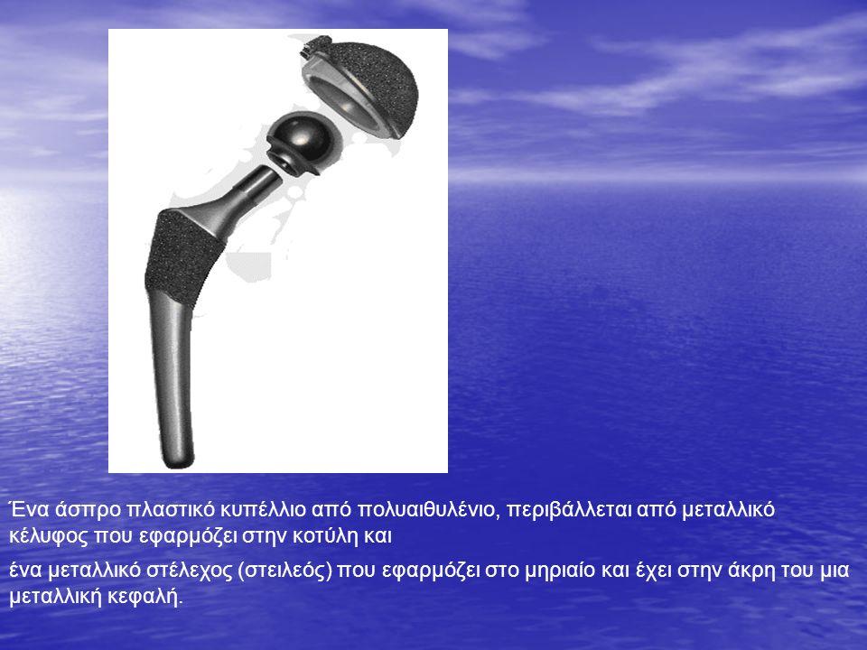 Ένα άσπρο πλαστικό κυπέλλιο από πολυαιθυλένιο, περιβάλλεται από μεταλλικό κέλυφος που εφαρμόζει στην κοτύλη και ένα μεταλλικό στέλεχος (στειλεός) που εφαρμόζει στο μηριαίο και έχει στην άκρη του μια μεταλλική κεφαλή.