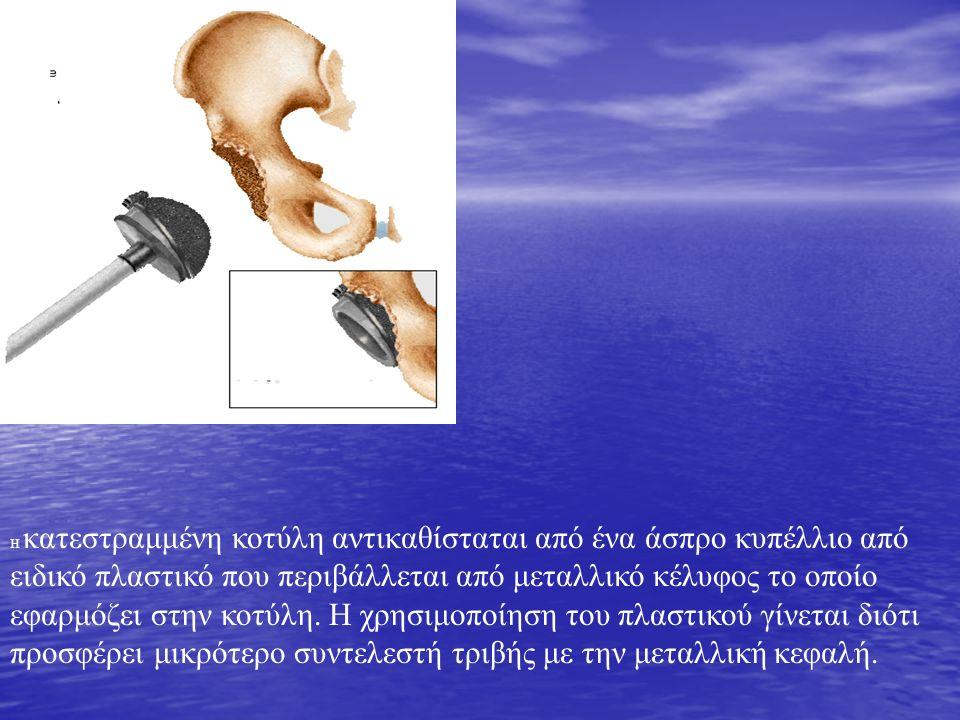 Η κατεστραμμένη κοτύλη αντικαθίσταται από ένα άσπρο κυπέλλιο από ειδικό πλαστικό που περιβάλλεται από μεταλλικό κέλυφος το οποίο εφαρμόζει στην κοτύλη.