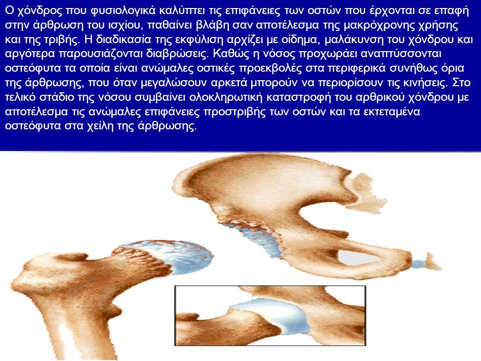 Ο χόνδρος που φυσιολογικά καλύπτει τις επιφάνειες των οστών που έρχονται σε επαφή στην άρθρωση του ισχίου, παθαίνει βλάβη σαν αποτέλεσμα της μακρόχρονης χρήσης και της τριβής.